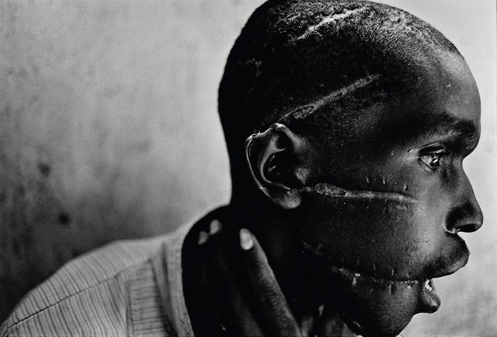 1995. Hutu nemzetiség ű fiatalember a Vöröskereszt nyanzai kórházában.Az Interahamwe hutu milícia szabdalta össze a férfi arcát, mert azzal gyanúsították őt, hogy szimpatizál a hutu lázadókkal. A ruandai hutu és tuszi népcsoport ellenségeskedése több évtizedes múltra tekinthet vissza. 1994 áprilisában Juvénal Habyarimana hutu nemzetiségű ruandai elnök tisztázatlan körülmények meghalt egy repülőgép-balesetben, ezt követően kezdődött a népirtás.James Nachtwey díjnyertes fotója egy megcsonkított arcú ruandai férfit ábrázol. A portré emlékezetes arcává vált annak a ruandai népirtásnak, a II. világháború utáni egyik legnagyobb népirtás. 1994-ben Ruandában a hutu szélsőségesek 100 ezer embert öltek meg minden héten, amit az ENSZ és a nagyhatalmak tétlenül néztek végig. A rádióból sugárzott gyilkos hisztériakampány eredményeként machetével mészároltak le teljes családokat, tömegével csonkítottak meg gyerekeket és gyújtották rá a templomokat a menedéket keresőkre.