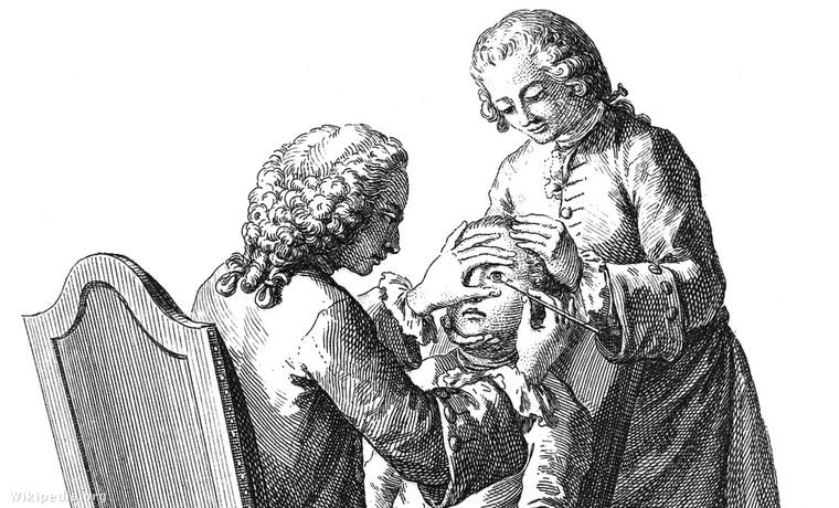 Szemműtét az 1700-as évek közepén
