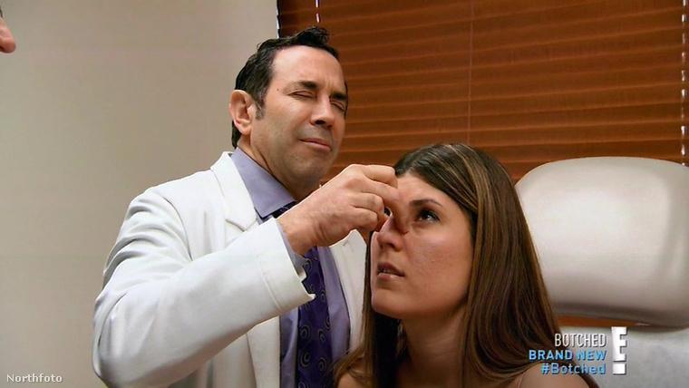 Candace a Botched című tévéműsorban már második orrműtétjére készül