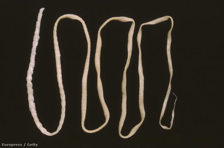 Ez ugyan egy illusztráció a galandféregről, de nem ezt távolították el a betegből.