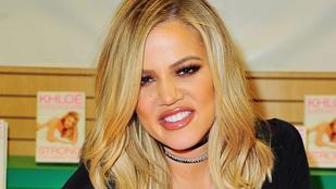 Khloe Kardashian megmutatja, miért rossz a szájfeltöltés