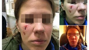 Keresik a Margitszigeten megvert futónő támadóját
