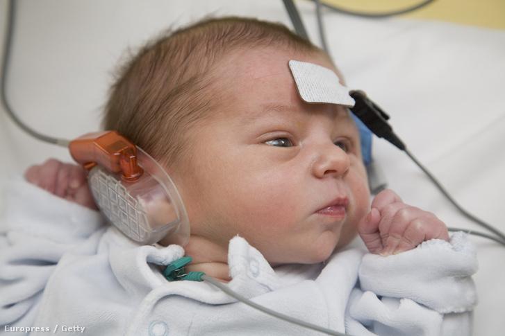 Hallásvizsgálatot végeznek egy újszülött csecsemőn