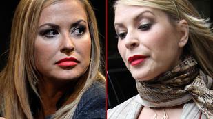Ön szerint 5 év alatt kiment Anastacia arcából a tengernyi botox?