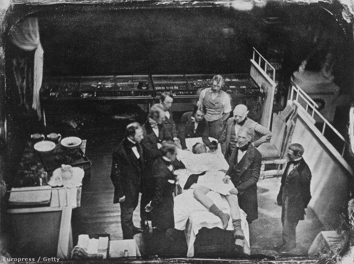 Sebészeti műtét 1846-ból.