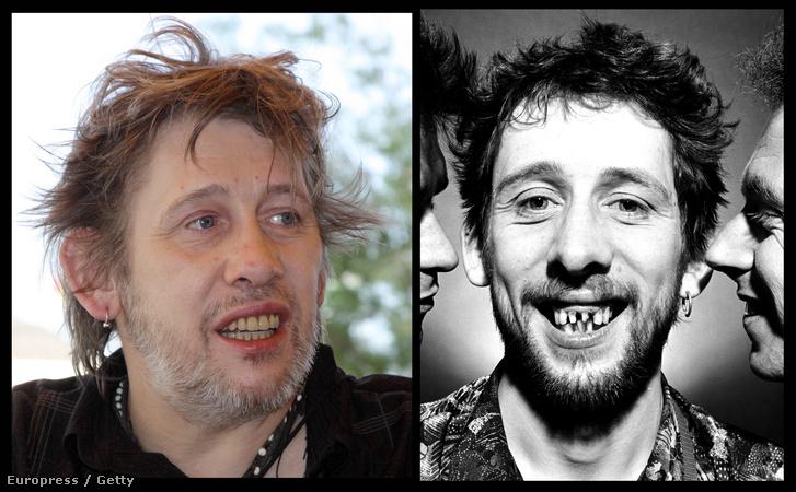 Shane MacGowan a 2009-ben kapott fogsorral és korábban, amikor még a saját fogaiból is volt néhány