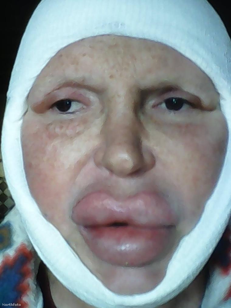 tk3s bm transgender surgery 02397691