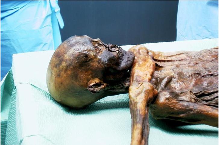 Ötzinek fájhatott a hasa