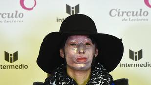 Megmutatta arcát a savval leöntött kolumbiai nő