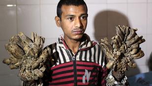 Megszabadítják ágaitól a bangladesi faembert