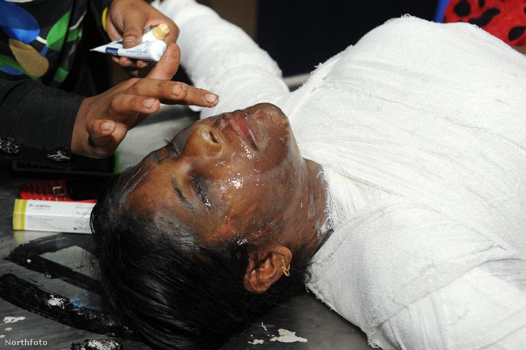 tk3s bm acid victim dhaka 02425948