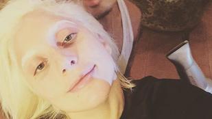 Lady Gaga szépségtippjeit nem feltétlenül érdemes követni
