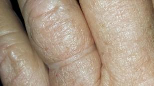 55 év után vágták le a kezéről a jegygyűrűt