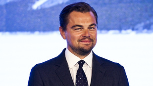 Leonardo DiCaprio fején történt valami gyanús