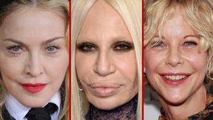 Még néhány celeb, akikkel jól kitoltak a plasztikai sebészek