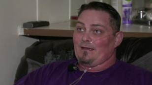 Horror: ez a férfi arra ébredt, hogy minden fogát kihúzták