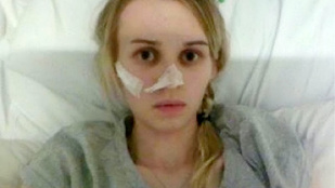 Kalóriák belélegzésétől retteg az anorexiával sújtott brit lány