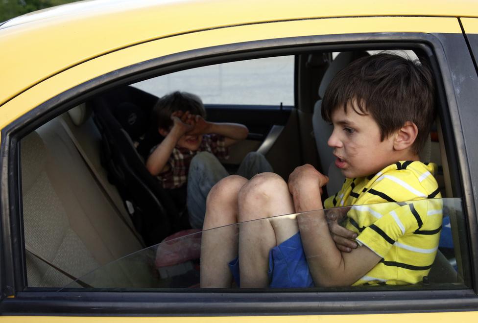 Röviddel azután, hogy a gyerekek a nagyszülőkhöz kerültek, a családot kilakoltatták, mert ekkor már két éve nem fizettek lakbért. A fotó a kilakoltatás napján készült, amikor Lanették a kipakolással voltak elfoglalva, és magukra hagyták a testvéreket a kocsiban. Gallagher megharapta a testvérét, aki begubózott, és az autó ajtajához passzírozta magát. Így ült hosszú percekig.