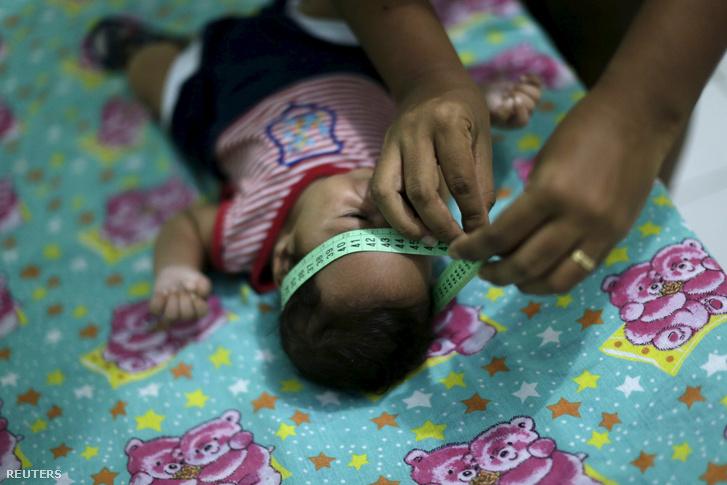A zikavírus miatt kisfejűséggel született csecsemő Brazíliában.