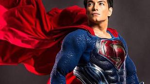 23-szor feküdt kés alá, hogy olyan legyen, mint Superman