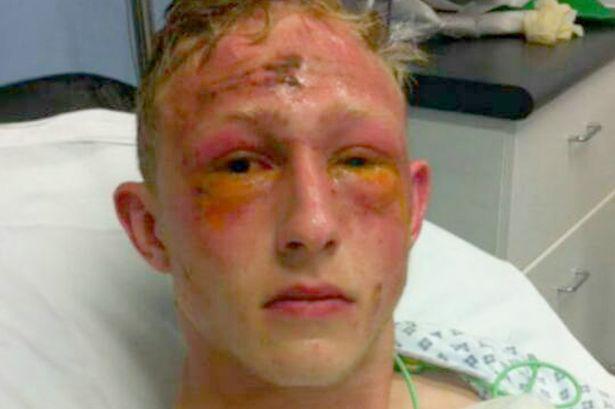 Lee Elliott akár a látását is elvesztheti bal szemére.