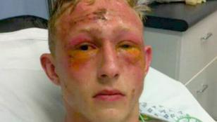Öt tini arcába öntött savat egy ámokfutó