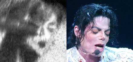 Ultrahang, Michael Jackson