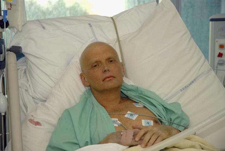 Alexander Litvinyenko a mérgezés után a kórházban.