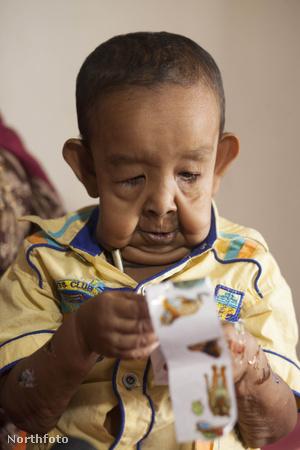 tk3s bm progeria child 02560147