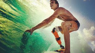 Leharapta a lábát a cápa, protézissel szörfözik tovább