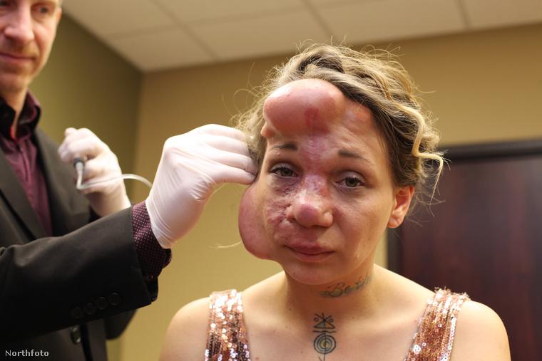 A metódus a következő volt: orvosi kendőket sóoldattal töltöttek meg, amelyeket hetente egyre nagyobbra fújva, afféle lufiszerű tárgyként a homlokába és az arccsontja mellé helyeztek. A rendszeres beavatkozás két hónapig tartott, célja pedig az volt, hogy a bőrt folyamatosan nyújtsák, hogy a műtét során kivágott részeket a nő saját bőrével tudják majd helyettesíteni. Az elképzelés láthatóan bevált, sőt, ahogy eredetileg tervezték, az orrát is sikerült a saját bordacsontjából újjáépíteni.