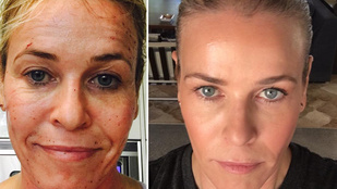 Chelsea Handler új arcot kapott