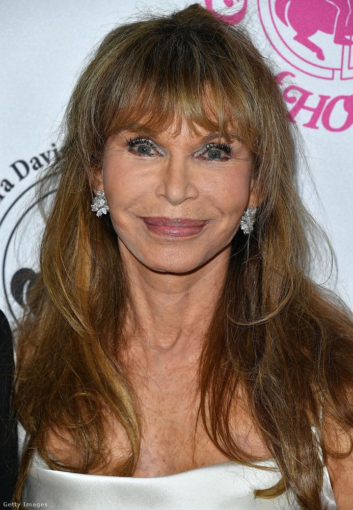Ann Turkel 1946-ban született, modellként és színésznőként futott be