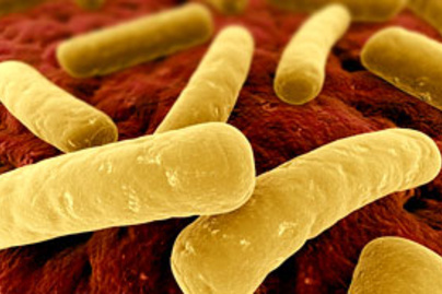 clostridium difficile lead