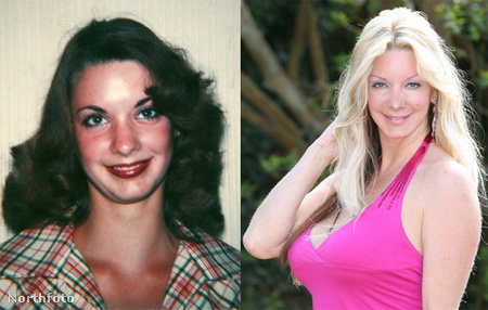 Ilyen volt és ilyen lett Sarah Burge, aki élő Barbie-babává műttette magát