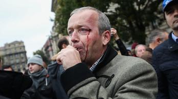 Pénzbüntetést kért az ügyészség az Ungváryt megtámadó férfira