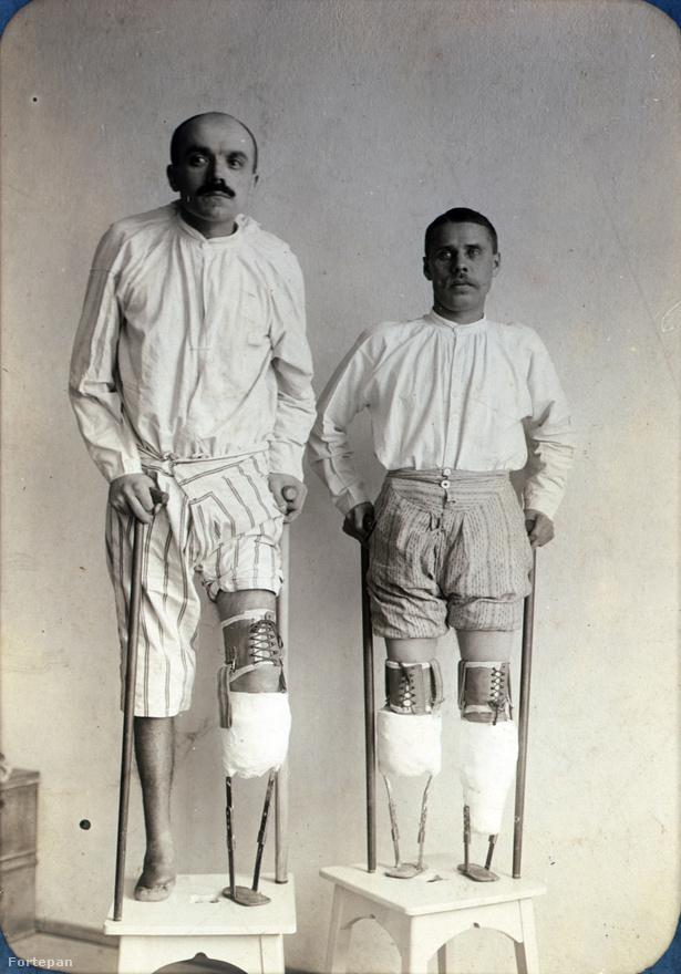 Ahogy említettük, Arnóczky János a 25 képes sorozatban az egyedüli, aki többször is szerepel (van egy harmadik kép is róla, de azt nem válogattuk be). Itt épp az látszik, hogy a kolozsvári kórházban a sebészet mellett a protézisgyártás is üzemelt.                                                   Ne felejtsük, hogy a képen az 1910-es évek végének csúcstechnikája látható, ahogy a sebek ellátásáról készült fotóknál, úgy itt is az alkalmazott eljárás megörökítése volt a cél. Ugyanakkor az is látszik, hogy külön műterem nem állt rendelkezésre, a két alany két hokedlin áll. A nekünk balra álló embert Számuel Imrének hívták.