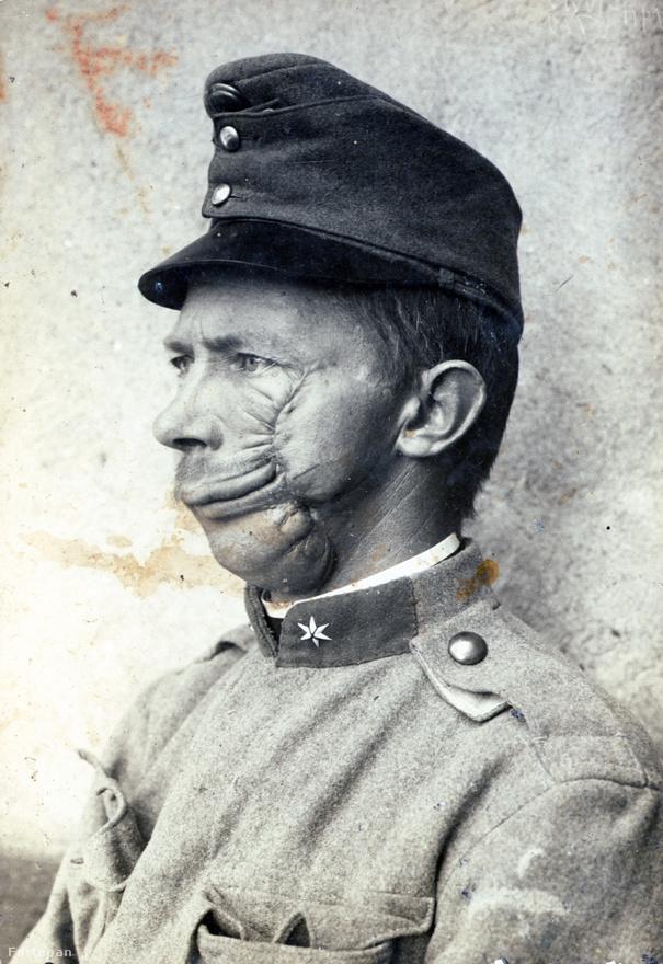 A legelborzasztóbb kép talán a válogatásban. A plasztikai sebészet még nagyon gyerekcipőben járt ekkor, bár talán pont az ilyen sebesülések, vagyis maga a háború indította el azt a fejlődést, amely miatt ma már megdöbbentő eredményekre képesek az orvosok. A háborús plasztikai sebészet úttörőjének a brit Harold Gilliest tartják, aki először használt bőrgraftokat a sértetlenül maradt testrészekről.                         A nagy különbség a kolozsvári sebészekhez képest, hogy Gillies kifejezetten rekonstrukciós célú műtéteket végzett, jó ötezret, amivel lefektette a plasztikai sebészet alapjait.