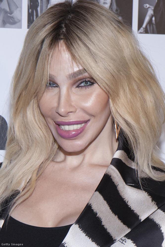 Az ő neve Dina Delicious, és az a tippünk, hogy nem veti meg a plasztikai beavatkozásokat.