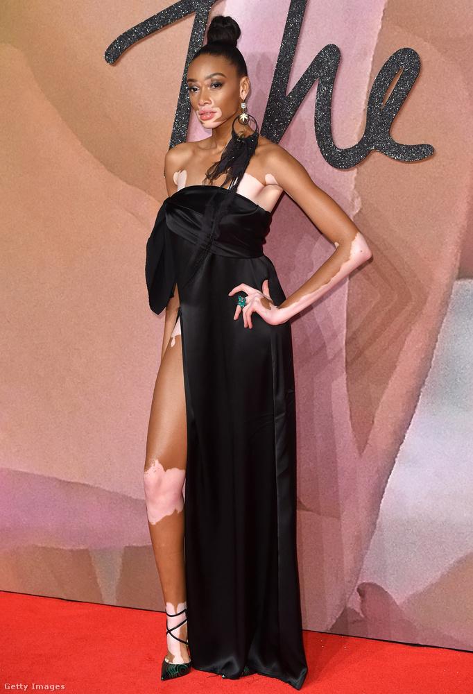 Ahol a mostanság menő modellek jelen vannak, onnan nem hiányzohat Winnie Harlow sem, akin egy ilyen viszonylag egyszerű fazonú ruha is különlegesen hat