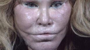 Féltékenységből támadt szerelmére a túlműtött arcú milliárdosnő