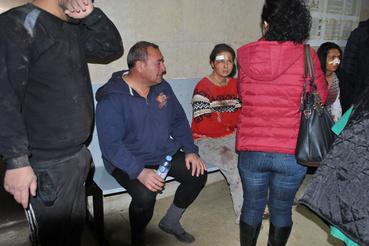 A sebesültek között sokan súlyosan megégtek