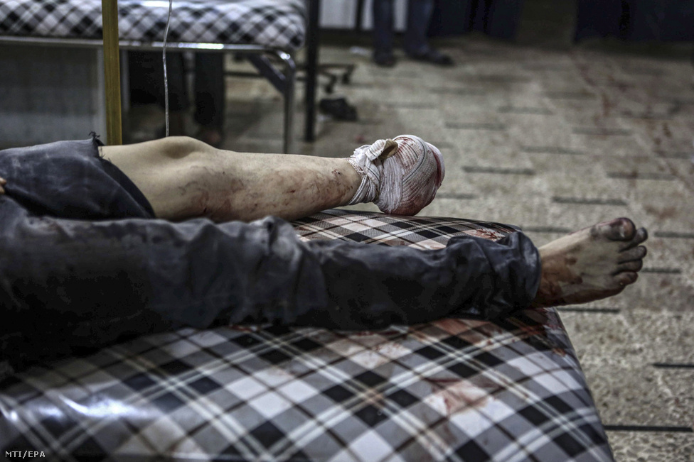 Szíriai kormányerõk légicsapásában súlyosan megsebesült férfi fekszik a Damaszkusz közelében fekvõ és a szíriai felkelõk uralta Duma egyik kórházában.