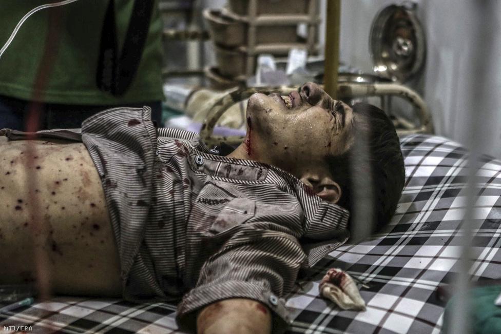 Sebesült szíriai fiú egy tábori kórházban, 2016. őszén.