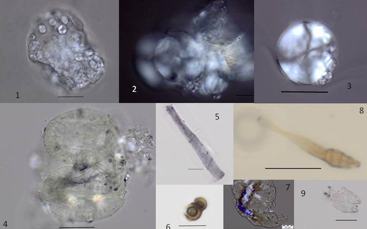A fogakon talált ételmaradványok mikrofosszíliái. 1-3: keményítószemcsék, 4: fenyőpollen, 5: növényi rost, 6: gombaspóra, 7: húsmaradvány, 8: gombaspóra, 9: lepkeszárny