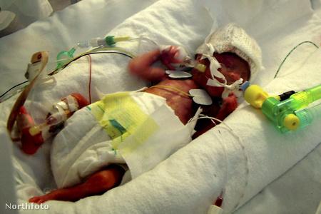 Greg és Colette Beard fia, Lewis, aki kóli-fertőzést kapott egy lutoni kórházban