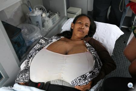 Harmadik gyereke születése után a perui Julia Manihuari szervezetében nem állt le a mellek megnagyobbodásáért felelős hormonok működése, ezért hét év alatt, 29 éves korára akkorára nőtt a melle, hogy képtelen volt tőlük kikelni az ágyából