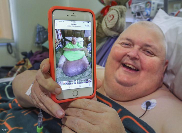 A 2017. február 7-én közreadott képen a Mississippi állambeli Roger Logan mutat egy, műtét előtt készült fényképet magáról a Bakersfield Kórházban.