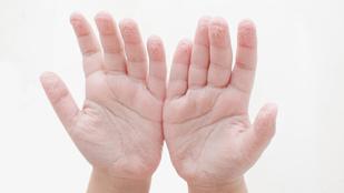 Mitől lesz szottyos az ujjbegyünk, ha sok időt töltünk víz alatt?