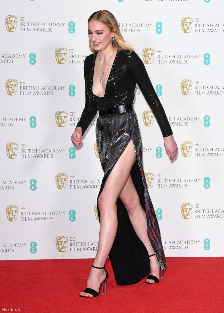 A BAFTA-gálát Katalin hercegné szabadon hagyott válla mellett egyértelműen a 20 éves Sophie Turner, és az ő lenge öltözéke uralta.